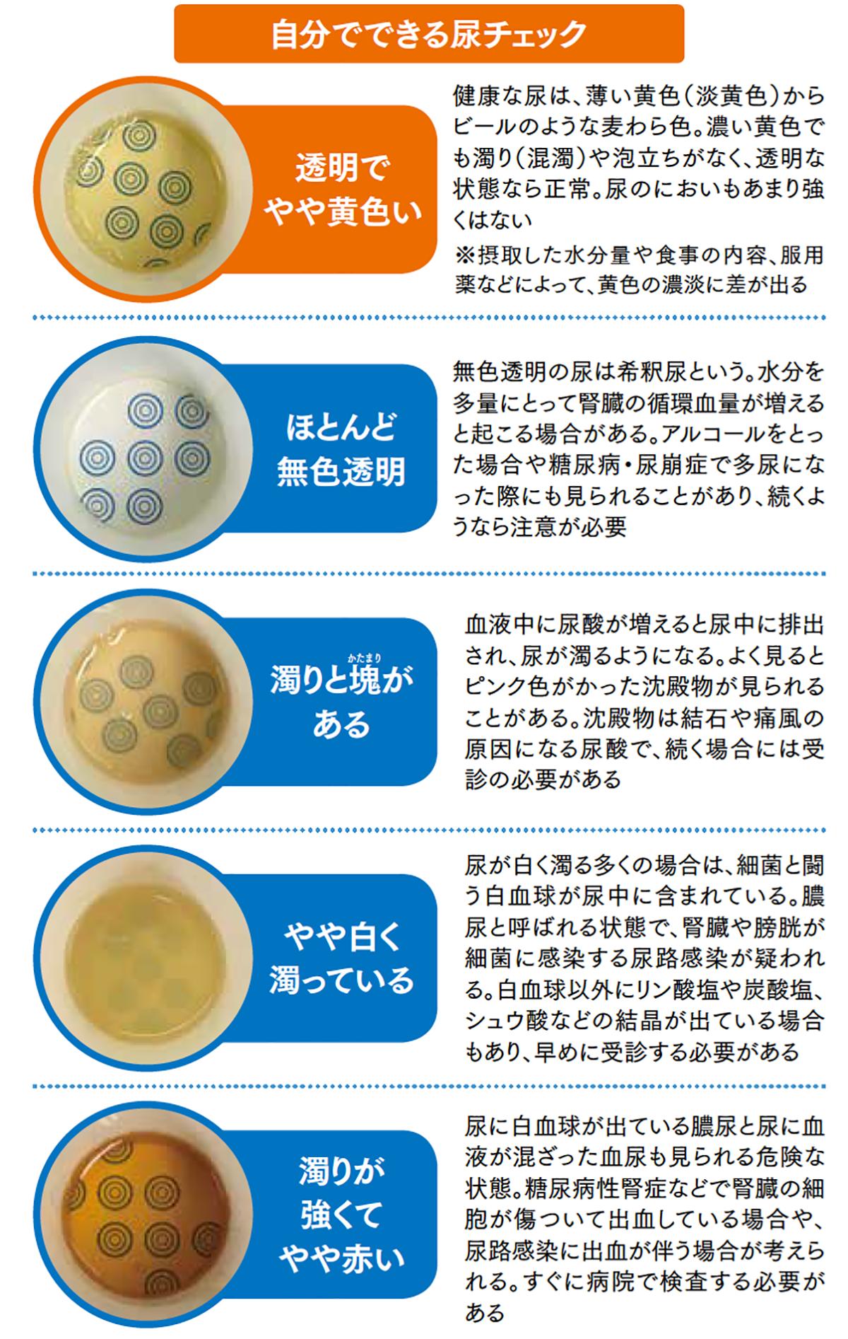 濁る 原因 尿